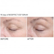 EGF Serum on Eyes Biotylab